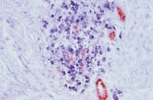 Dr Dinah Parums - Combined IHC (CD31) and NISH (TGFbeta)
